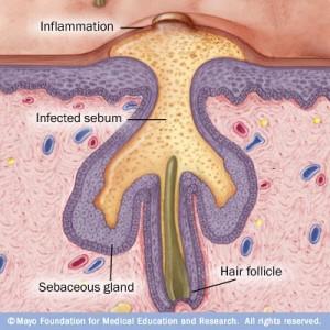 Causes of Acne, Skin Diagram